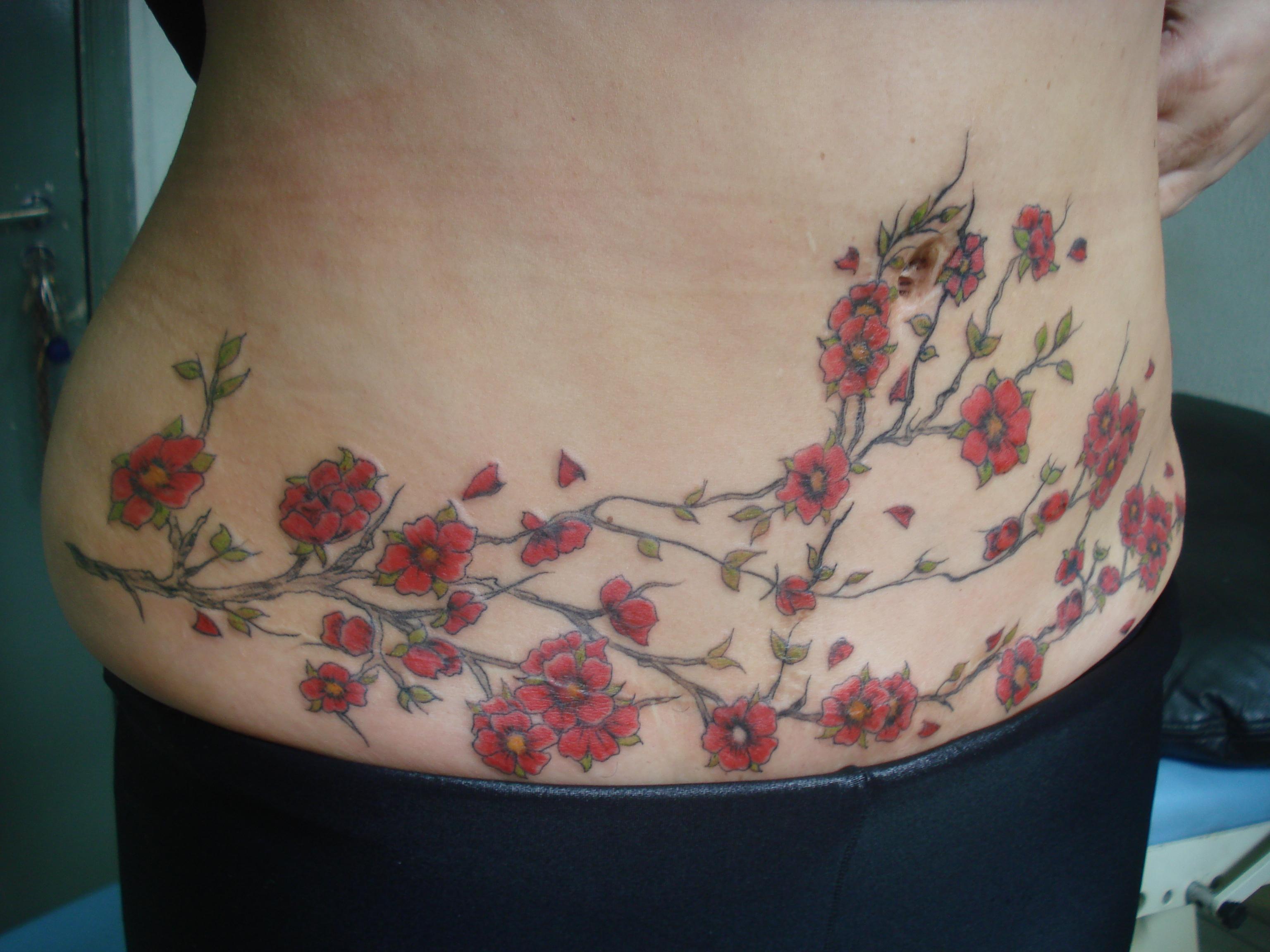 Preferência Abdominoplastia - Tattoo Art Studio AR08